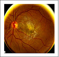 Image Of A Retina With Angioid Streaks